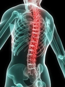 bigstock_Painful_Spine_2584350